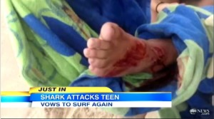 SHARK BITES FOOT OF SURFER IN FL