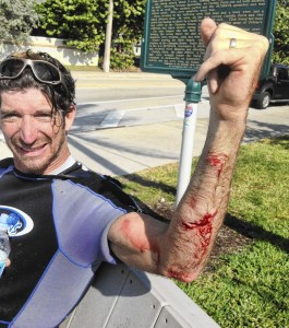 Kurt Hoffman, was bitten on the arm by a shark Saturday while kiteboarding…